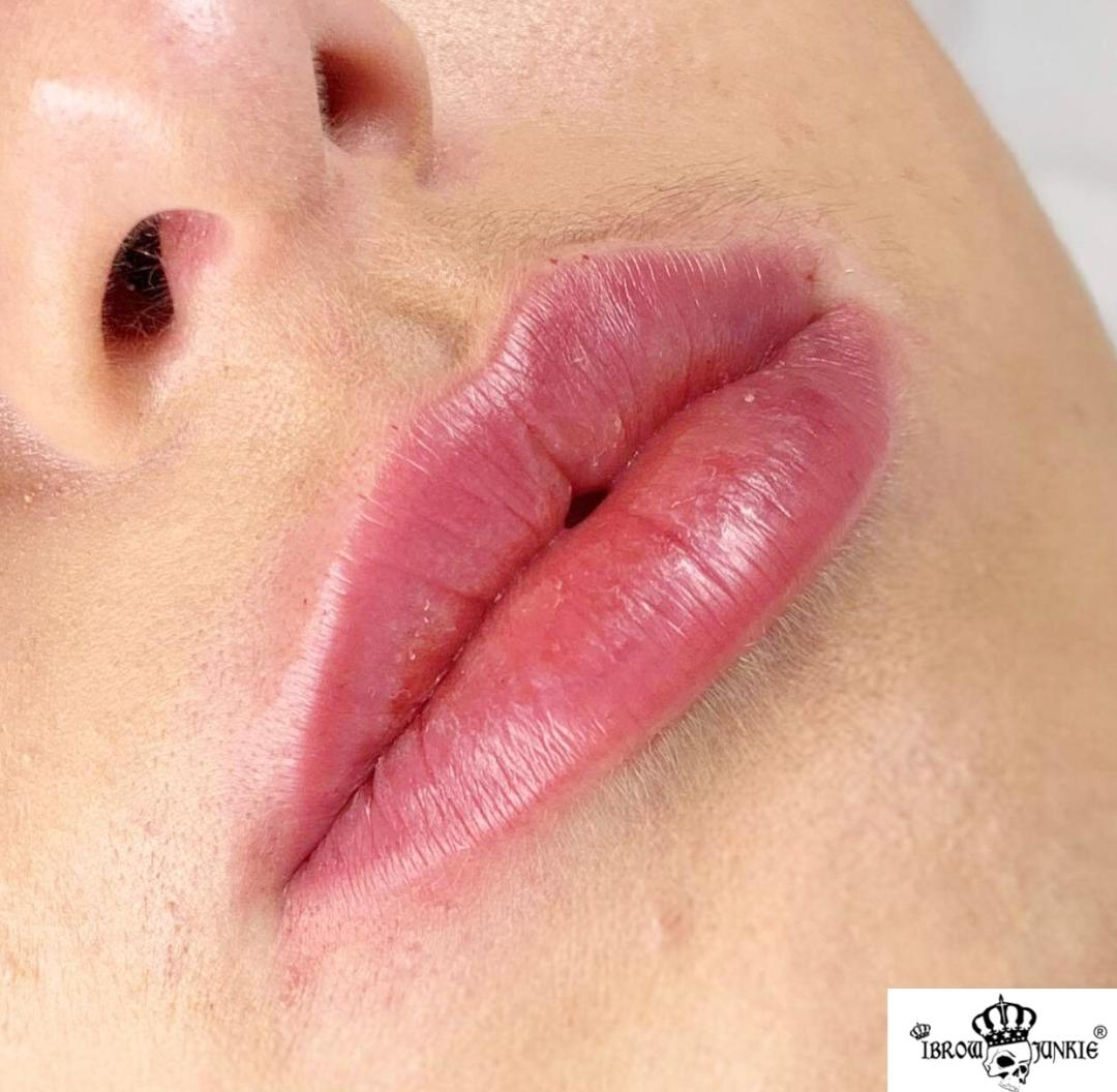 Lip Filler After Newcastle Lip Fillers iBrow Junkie