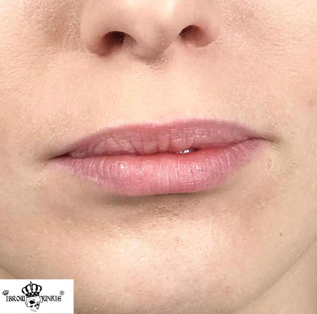 Lip Filler After Newcastle Lip Fillers iBrow Junkie2