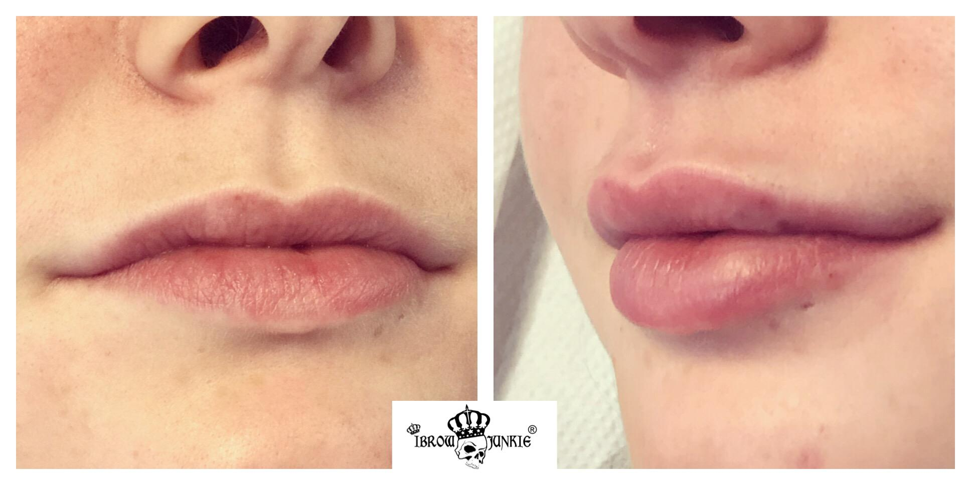Lip Filler Before After Newcastle Lip Fillers Kay Mac Dobson iBrow Junkie