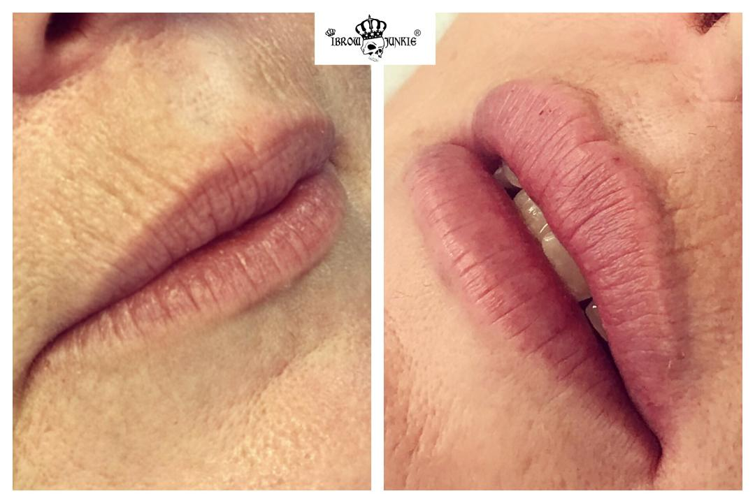 Lip Filler Before After Newcastle Lip Fillers iBrow Junkie